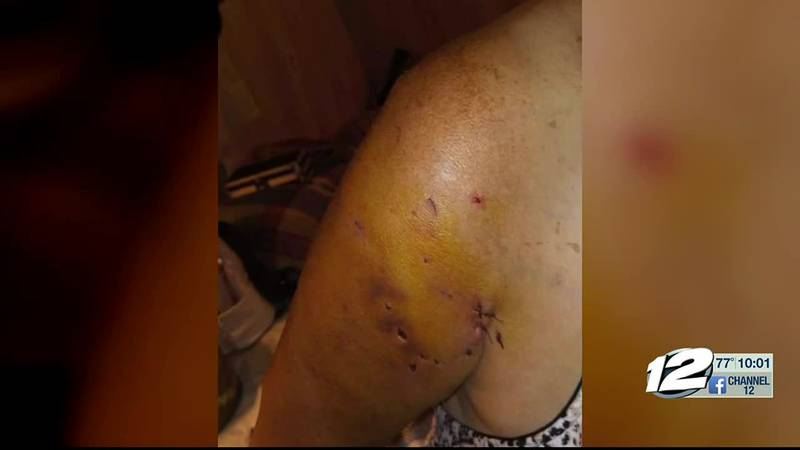 A Bryan County woman says she was attacked by her neighbor's dogs last Thursday and it happened...