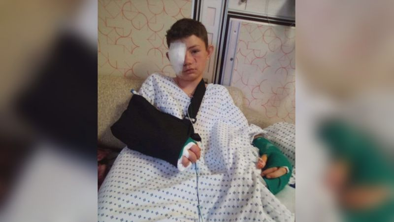 A Lone Grove boy is recovering from a six hour surgery after a dog attack last Tuesday.