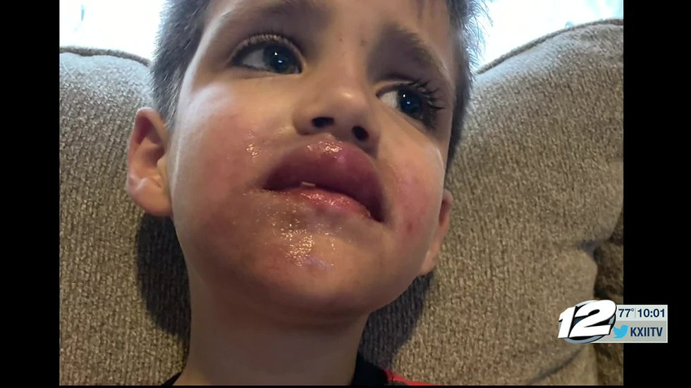 A Texoma boy is recovering after something meant to protect him left him with burns on his...